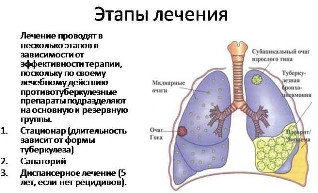 Таблетки и лекарства для профилактики туберкулеза