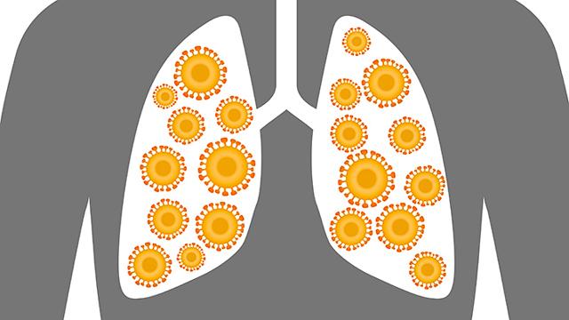 Виды пневмонии: основная классификация и симптоматика видов