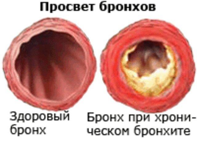 Хронический бронхит: причины развития, симптомы и лечение