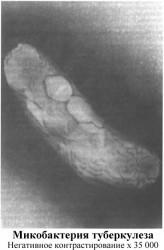 Возбудитель туберкулеза:его устойчивость, генетика микобактерий