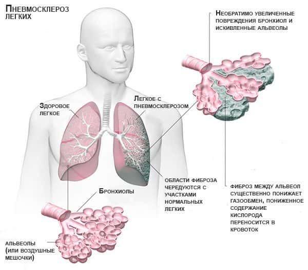 Метатуберкулезные изменения в легких - что это такое