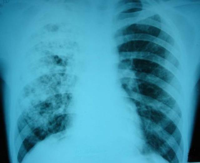 Как и через сколько проявляется туберкулез, как быстро он развивается и как протекает