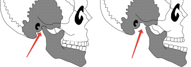 Почему возникает боль в челюсти возле уха?
