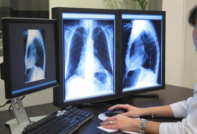 Рентген при бронхите и показывает ли флюорография бронхит