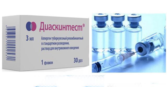 Диаскинтест: что это за прививка, какие отзывы врачей и противопоказания