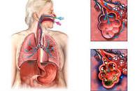 Бактериальная пневмония: симптомы, факторы риска и лечение