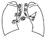 Туберкулез внутригрудных лимфатических узлов или ВГЛУ у детей