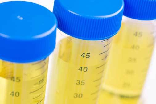 Анализ крови при пневмонии или воспалении легких у взрослых