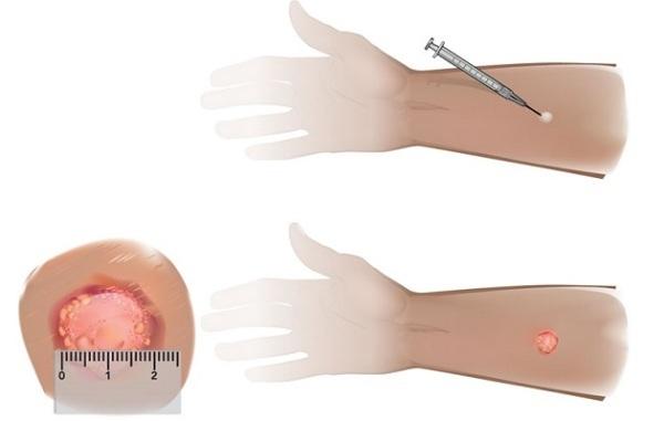 Манту 13 мм или 15 мм - что это значит у ребенка