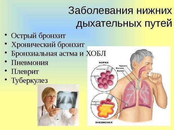 Амбробене или Амброксол: что лучше, характеристики препаратов