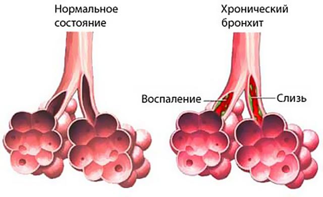 Кровь в мокроте при бронхите: почему появляется и лечение