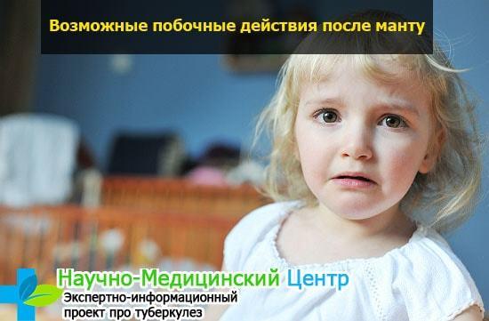 Прививка Манту: для чего делают детям и для чего она нужна