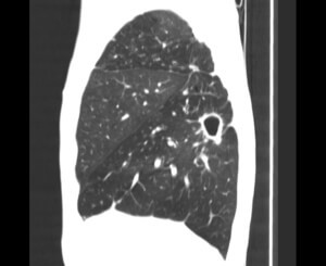Компьютерная томография легких при туберкулезе - как выглядит туберкулез легких на КТ