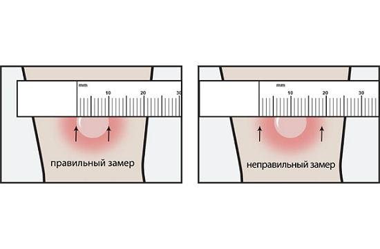 Туберкулиновая проба Манту или внутрикожная проба на туберкулез - что это такое