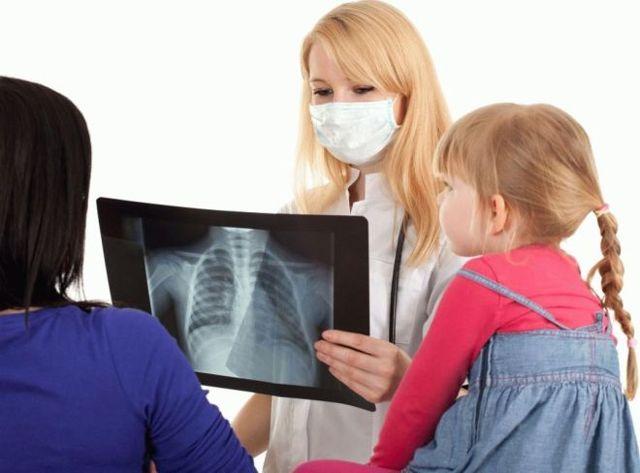 Рентген вместо Манту: что вреднее для ребенка и что безопаснее