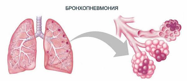 Бронхопневмония у детей: причины, лечение и профилактика