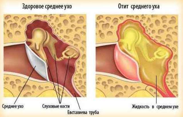 Отит среднего уха: причины возникновения и лечение у взрослых