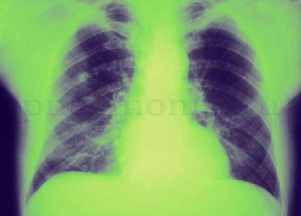 Деструктивная пневмония: причины воспаления и лечение