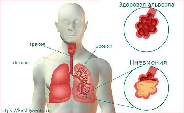 Какой кашель при пневмонии: типы кашля и способы лечения