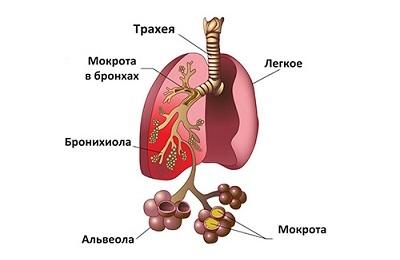Правосторонняя нижнедолевая и верхнедолевая пневмония
