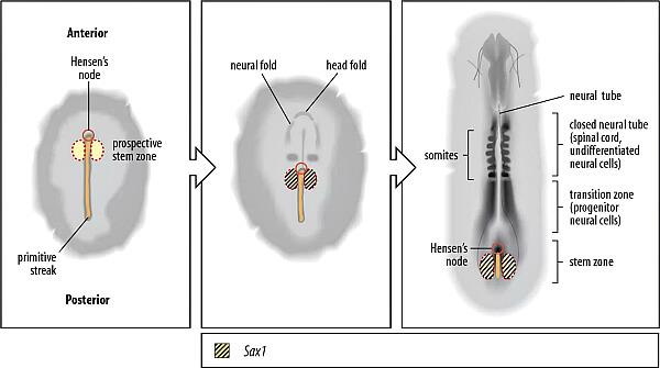 Закрытая форма туберкулеза: можно ли заразиться и как передается туберкулез