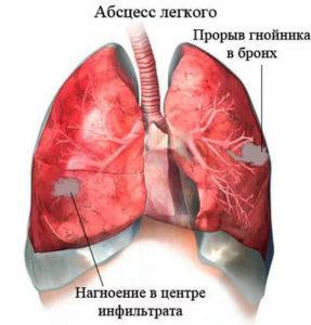 Осложнения и последствия пневмонии у взрослых: факторы риска