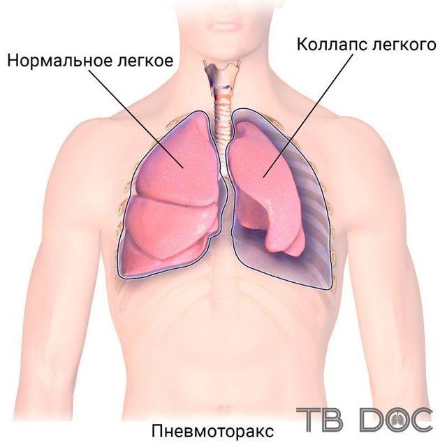 Поддувка легких при туберкулезе - применение коллапсотерапии