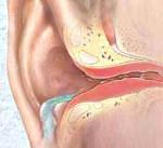 Особенности симптомов наружного отита и его лечение