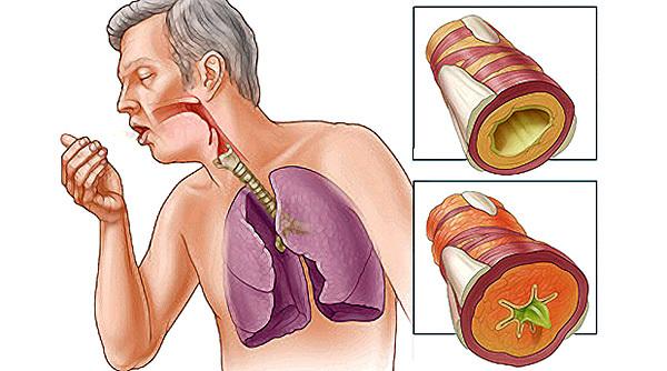 Гомеопатия при бронхите: принципы лечения у взрослых