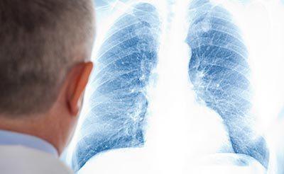 Может ли туберкулез протекать без симптомов - без кашля и температуры