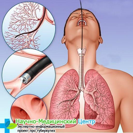 Посев на туберкулезную палочку или бак посев мокроты на туберкулез