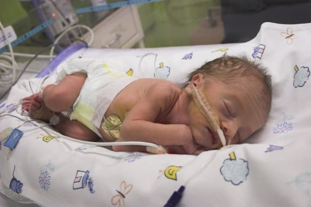 Аспирационная пневмония у новорожденных: какие последствия