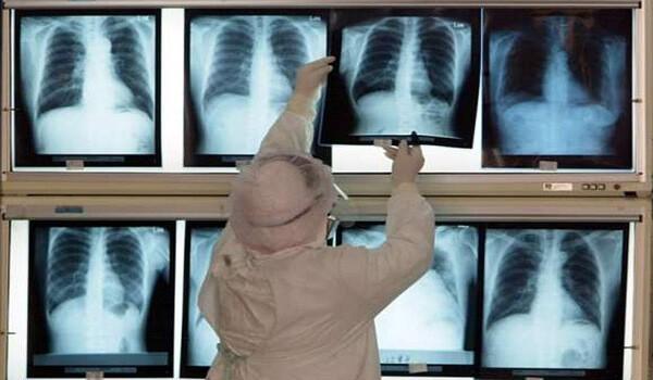 Внебольничная пневмония: лечение и клинические рекомендации
