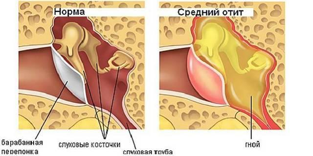 Как снять боль в ухе в ребенка