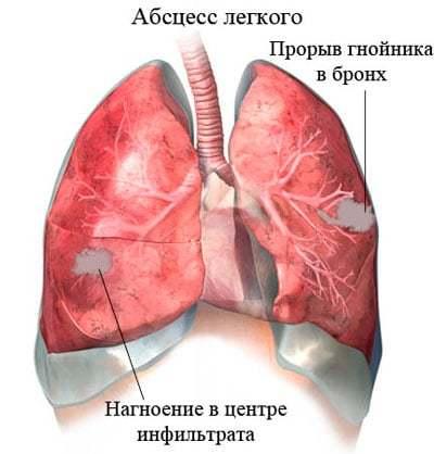 Абсцесс легкого или абсцедирующая пневмония: симптомы и лечение