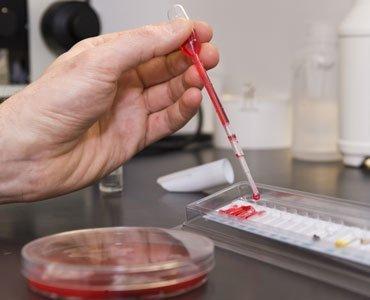 Как можно заразиться туберкулезом от человека, каким путем происходит заражение