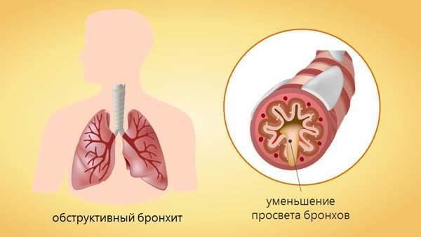 Бронхит у детей: причины заболевания, симптомы и лечение