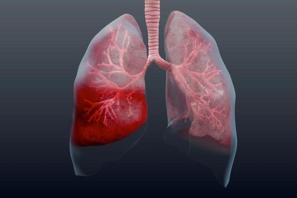 Барсучий жир при пневмонии: польза и противопоказания
