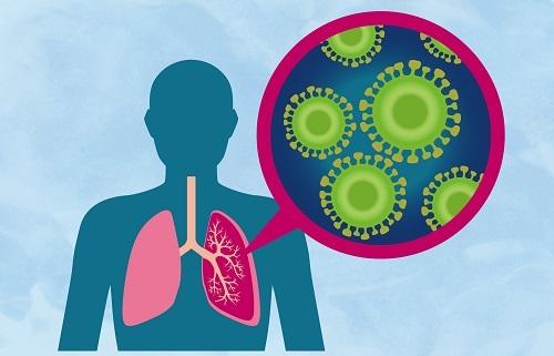 Пневмония без кашля: причины и клиническая картина
