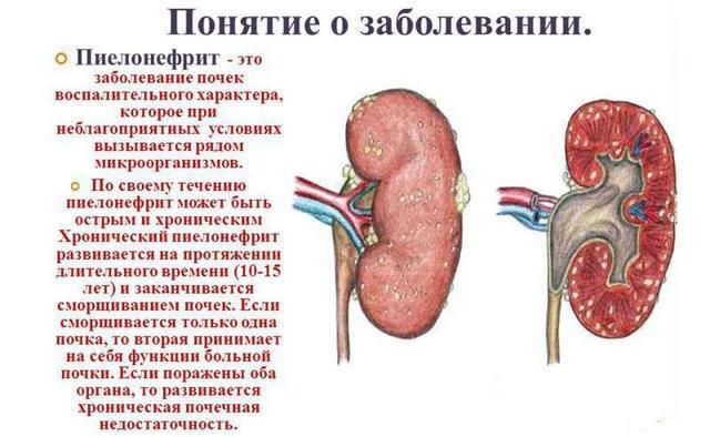 Физическая активность, спорт и дыхательная гимнастика при туберкулезе легких