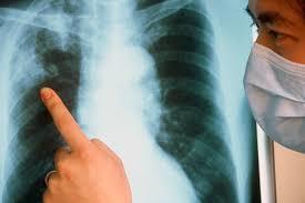 Открытая форма туберкулеза - сколько люди живут без лечения
