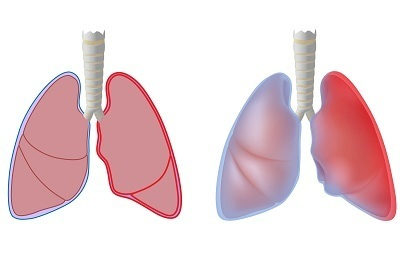 Туберкулезный плеврит: заразен или нет, симптомы и лечение