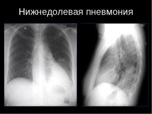 Сегментарная пневмония - правосторонняя и левосторонняя