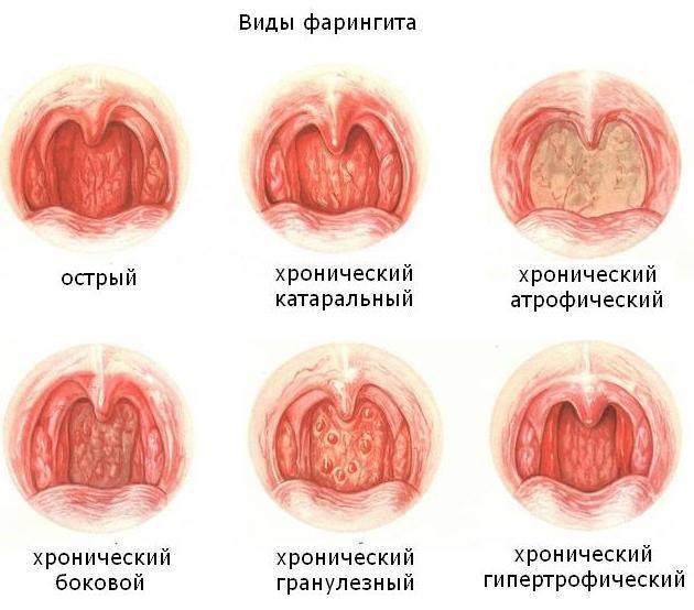 Сильная боль в горле отдает в ухо: причины