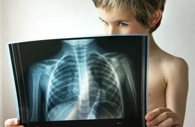 Двусторонняя пневмония у ребенка: симптомы, диагностика и лечение