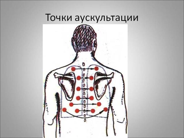 Дифференциальная диагностика пневмонии у детей