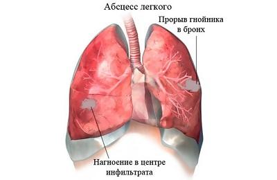 Атипичная пневмония у детей: особенности, симптомы и лечение