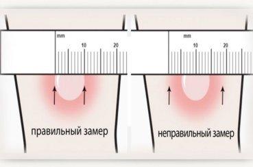 Норма размеров Манту у детей в 4 года и в 5 лет по таблице