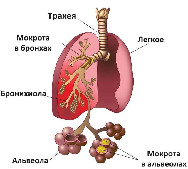 Пневмоцистная пневмония у ВИЧ инфицированных - лечение
