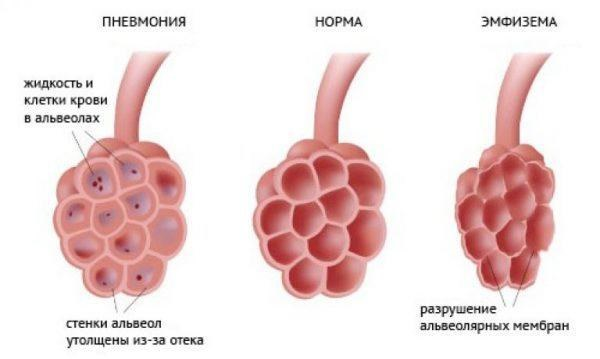Прикорневая пневмония у детей: симптомы и лечение
